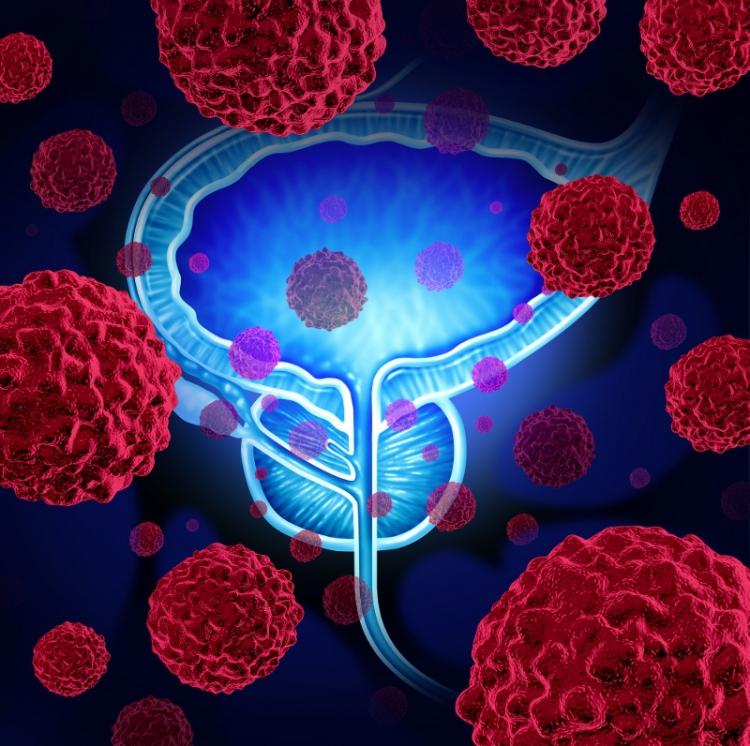 Prostatacancer: Störst överlevnad i Stockholm