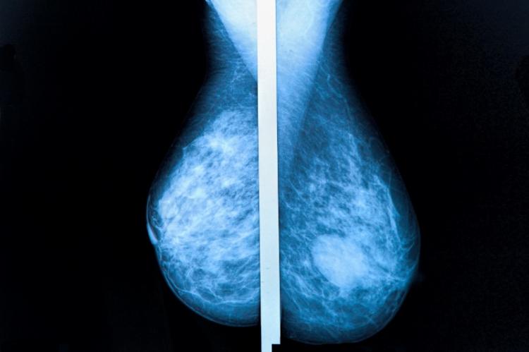 Kritiken växer mot åldersgräns för mammografi