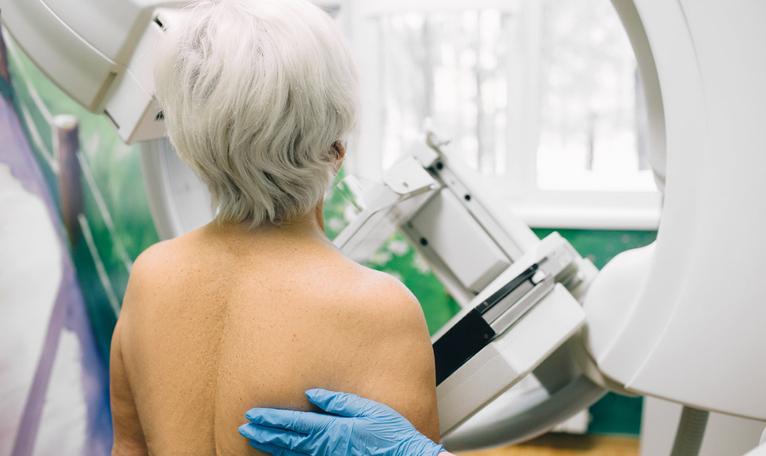 Fler äldre kvinnor erbjuds mammografi